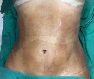 18-24 year old woman treated with Liposuction after 2644809