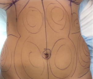 18-24 year old woman treated with Liposuction before 2644809