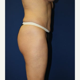 45-54 year old woman treated with Brazilian Butt Lift after 2356205