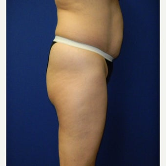 45-54 year old woman treated with Brazilian Butt Lift before 2356205
