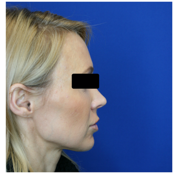 35-44 year old woman treated with Bellafill before 3724300