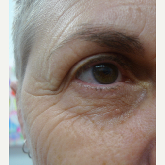 Eye rejuvenation with CO2 laser before 3133562