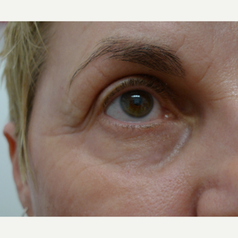 Eye rejuvenation with CO2 laser