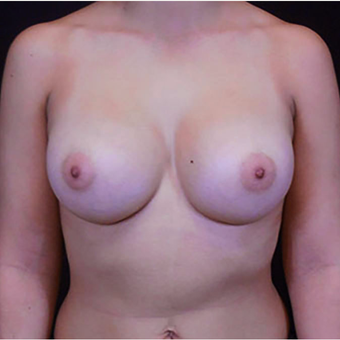 25-34 year old woman treated with Breast Augmentation after 3125304