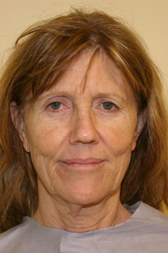 59 year old Female - Facelift, Browlift, Multi-Fractional laser resurfacing  before 1093103