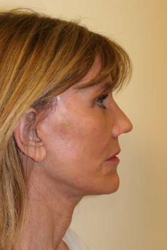 59 year old Female - Facelift, Browlift, Multi-Fractional laser resurfacing  1093103