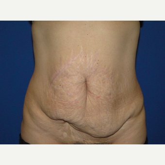 51 year treated with Tummy Tuck before 3787800