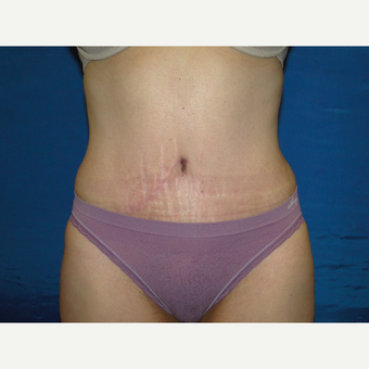 51 year treated with Tummy Tuck after 3787800