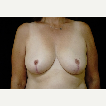 45-54 year old woman treated with Breast Reduction after 3338650