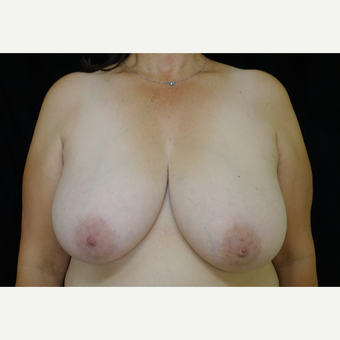 45-54 year old woman treated with Breast Reduction before 3338650