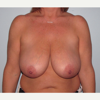 45-54 year old woman treated with Breast Reduction before 3851592