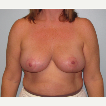 45-54 year old woman treated with Breast Reduction after 3851592