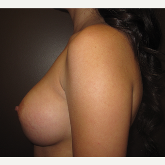 18-24 year old woman treated with Breast Augmentation after 3207768