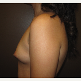 18-24 year old woman treated with Breast Augmentation before 3207768