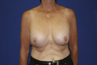 58 year old patient seeking to remove older breast implants after 1249622
