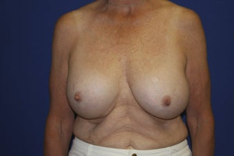 58 year old patient seeking to remove older breast implants before 1249622