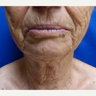 65-74 year old woman treated with Ultherapy before 3711577