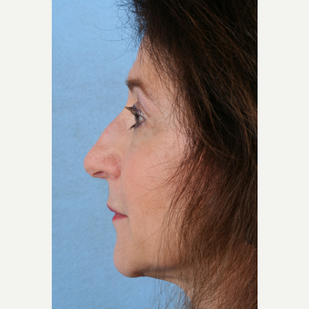 55-64 year old woman treated with Rhinoplasty before 3041366