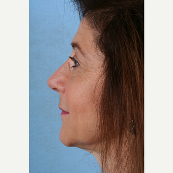 55-64 year old woman treated with Rhinoplasty after 3041366