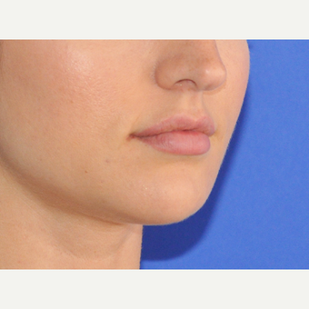25-34 year old woman treated with Lip Augmentation before 3300128