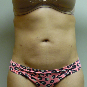Laser Liposuction of the abdomen and love handles