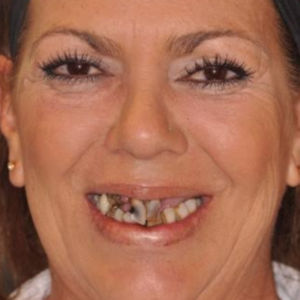 Teeth replaced with All-on-4 Dental Implants before 3696592
