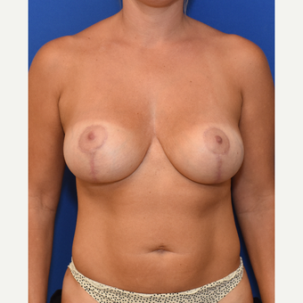 35-44 year old woman treated with Breast Augmentation and Breast Lift and Liposuction after 3661497
