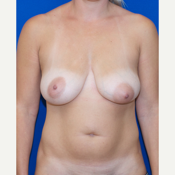 35-44 year old woman treated with Breast Augmentation and Breast Lift and Liposuction before 3661497