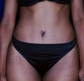 Female Tummy Tuck after 1458688