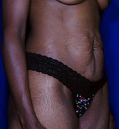 Female Tummy Tuck 1458688