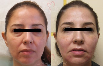 35-44 year old woman treated with Bellafill before 3670674