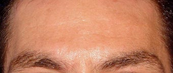 Botox for Men after 124031