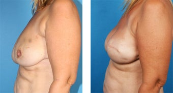 42 Year Old Woman, Cassileth One-Stage Breast Reconstruction after 1039918