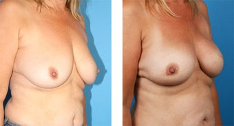 42 Year Old Woman, Cassileth One-Stage Breast Reconstruction 1039918