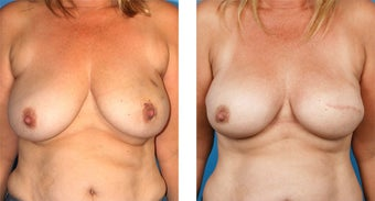 42 Year Old Woman, Cassileth One-Stage Breast Reconstruction before 1039918