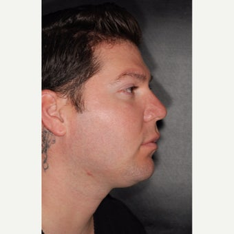 25-34 year old man treated with Buccal Fat Removal before 2251441