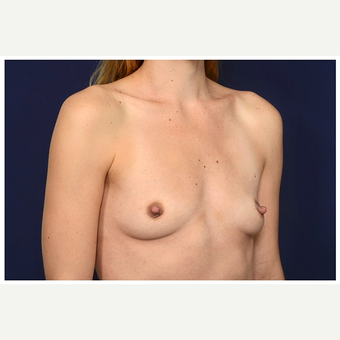 25-34 year old woman treated with Breast Implants before 3245991