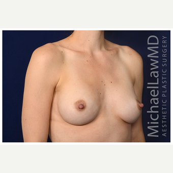 25-34 year old woman treated with Breast Implants after 3245991