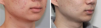 Buccal Fat Before and 2 Month After after 887612