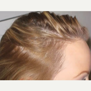 25-34 year old woman treated with Hair Transplant after 3714879