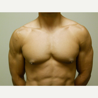 25-34 year old man treated with Male Breast Reduction before 3454630