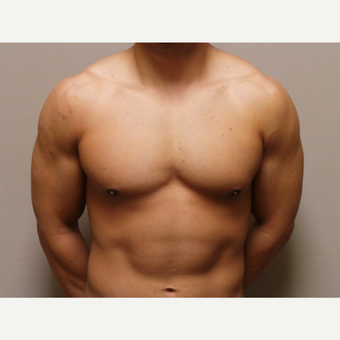 25-34 year old man treated with Male Breast Reduction after 3454630