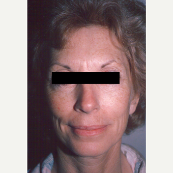 65-74 year old woman treated with Chemical Peel before 3543451