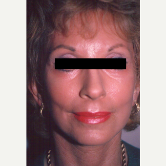 65-74 year old woman treated with Chemical Peel after 3543451