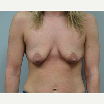 35-44 year old woman treated with Breast Augmentation before 3142269