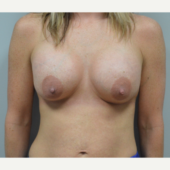 35-44 year old woman treated with Breast Augmentation after 3142269