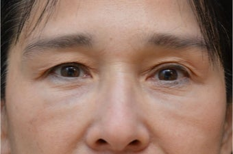 Upper Blepharoplasty before 3100733