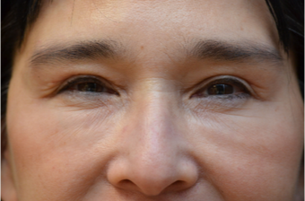 Upper Blepharoplasty after 3100733