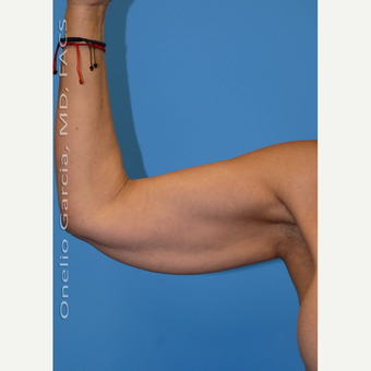 45-54 year old woman treated with Arm Lift + Vaser lipo before 3008699