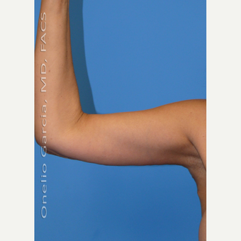 45-54 year old woman treated with Arm Lift + Vaser lipo after 3008699